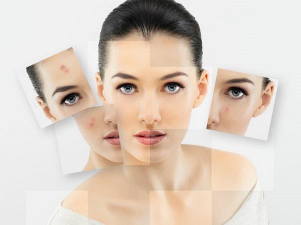 Conocer y prevenir las manchas en la piel