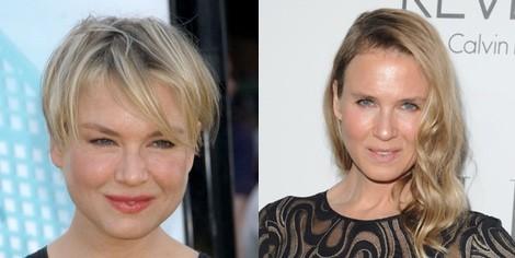 Renee Zellweger cirugía estética, antes y después