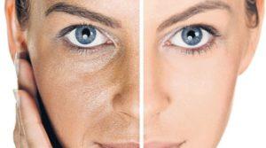Cómo hidratar una piel seca