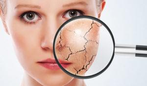 Cómo hidratar una piel seca sin mucho esfuerzo