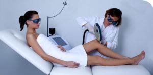 depilación láser mujer
