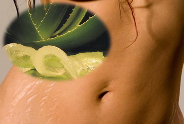 Aloe Vera para reducir las estrías